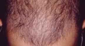 معرفی یک غذای معجزه دار برای جلوگیری از ریزش مو و سفید شدن مو