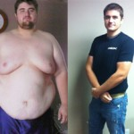 کاهش وزن قبل و بعد شماره 1 دکتر فیت
