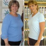 کاهش وزن قبل و بعد شماره 11 دکتر فیت