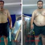 کاهش وزن قبل و بعد شماره 17 دکتر فیت