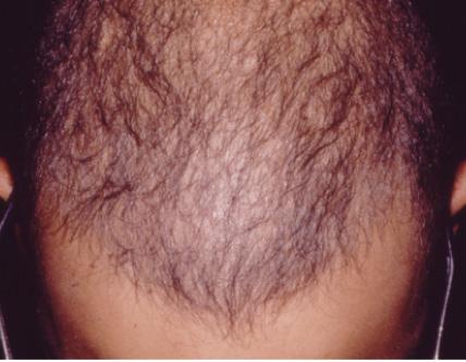 ریزش مو قسمت جلوی سر