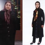 کاهش وزن قبل و بعد شماره 16 دکتر فیت