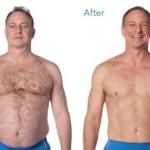کاهش وزن قبل و بعد شماره 40 دکتر فیت